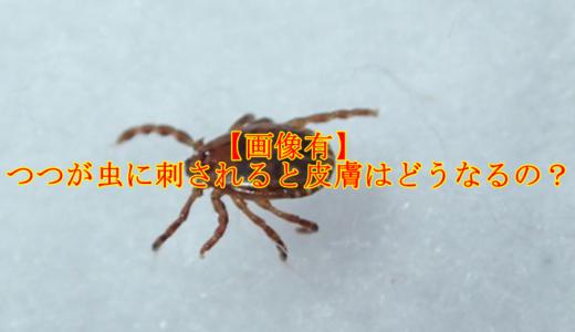 【画像有】つつが虫に刺されると皮膚はどうなる?死亡率はどれくらいなの?